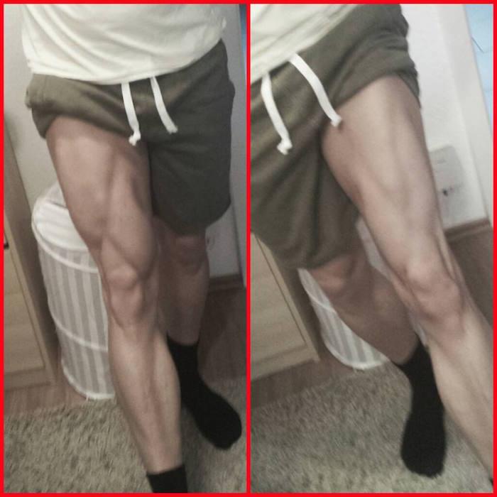 Aktueller Stand nach vier Wochen leichtem Beintraining (links gesundes, rechts kaputtes Bein)
