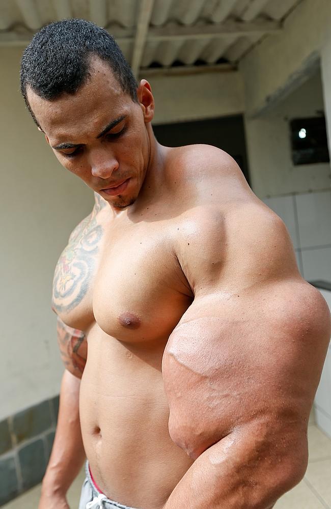 Durch die gefährliche Ölmixtur die er sich injiziert hat, verlor er beinahe beide Arme.