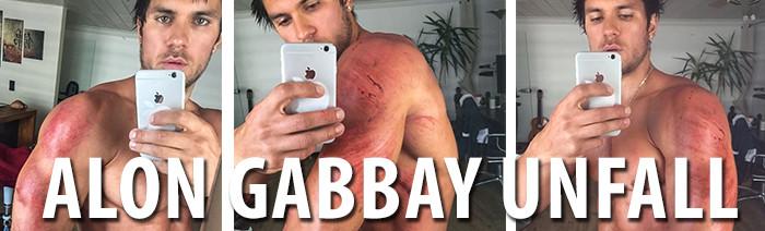 alon-gabbay-bei-quad-unfall-verletzt