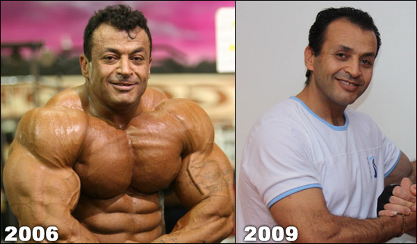 before and after steroids pictures after one cycle