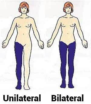 unilateral-oder-bilateral-was-ist-effektiver-abbildung