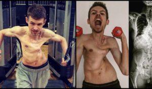 bodybuilding-trotz-80iger-behinderung