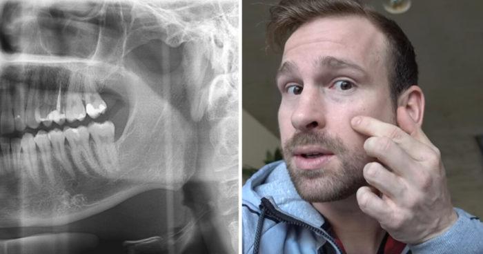 Ben Sattinger Gesichtstumor Kiefertumor Operation