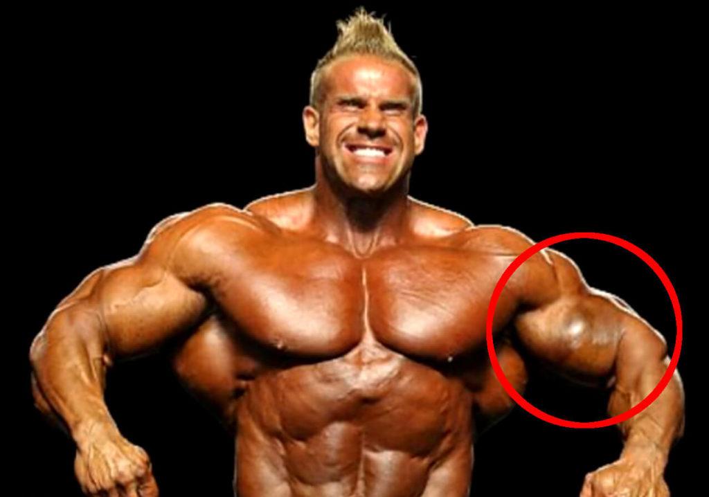 Die 5 schlimmsten Verletzungen im Bodybuilding - Gannikus.com