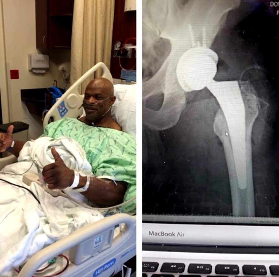 Ronnie Coleman Verletzungen