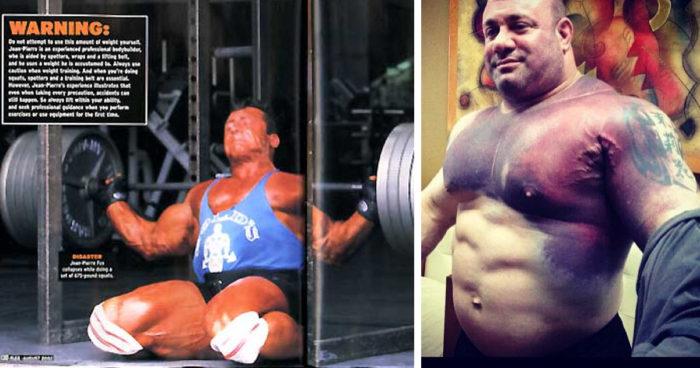 die-5-schlimmsten-verletzungen-im-bodybuilding
