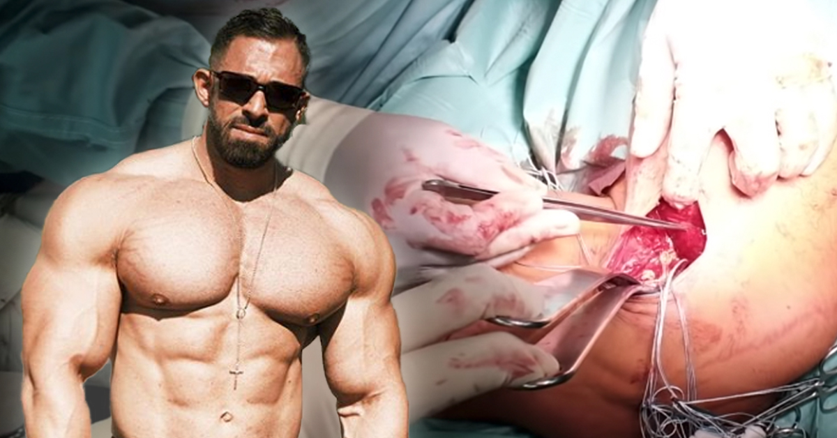 Unzensiertes Video: Kevin Wolter zeigt Brustmuskel-OP! - Gannikus.com