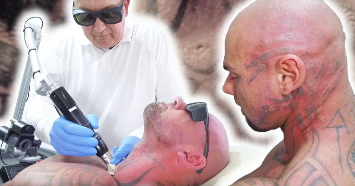 so-sieht-phil-bane-nach-der-tattooentfernung-aus