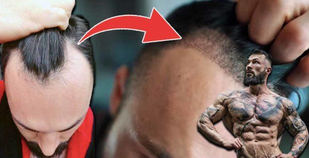 so-teuer-war-die-haartransplantation-von-jil
