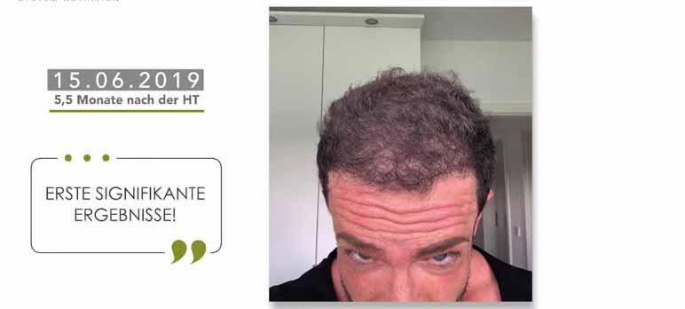 Nach 4 monaten haartransplantation 5 Nach der