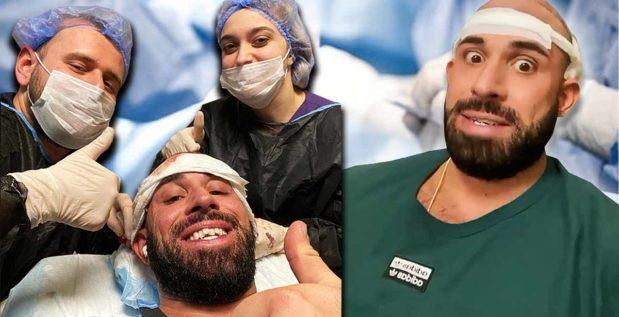 Titelbild: SO verlief die Haartransplantation von Kevin Wolter
