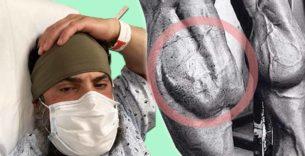 Titelbild: IFBB Pro Guy Cisternino mit Coronavirus im Krankenhaus
