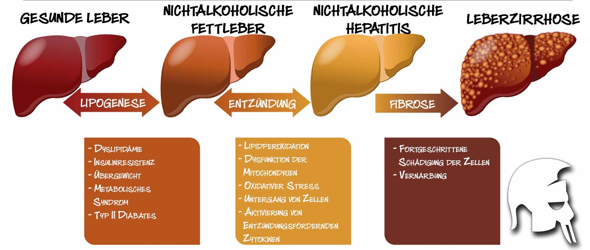 Ernährung nichtalkoholische Fettleber